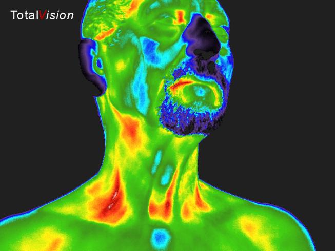 medische thermografie hoofd nek