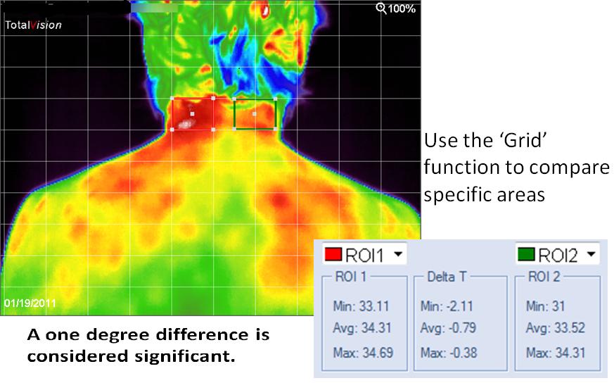 medische thermografie software