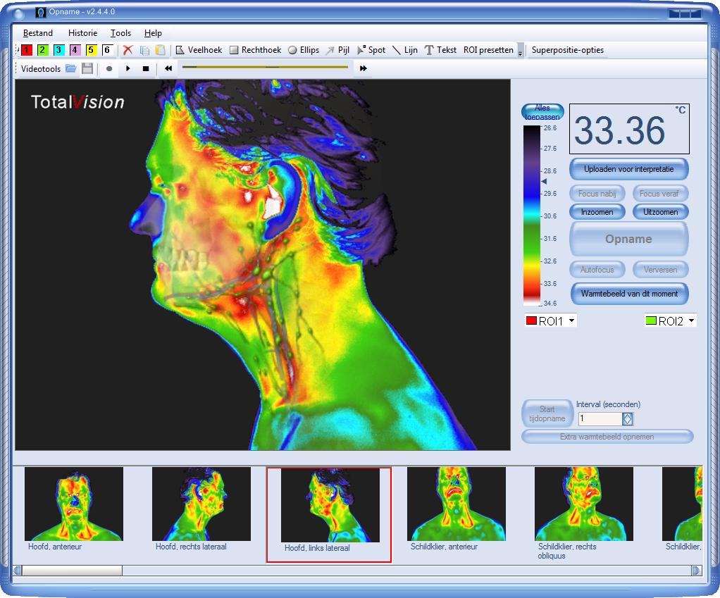medischethermografie nederlandse software